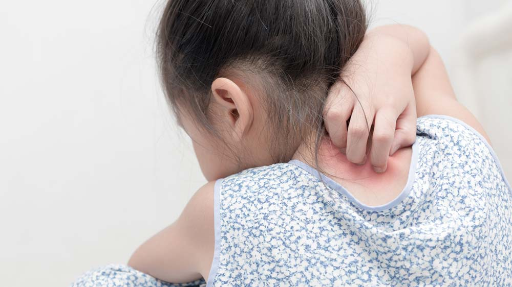 Bambú Clinic - eczema