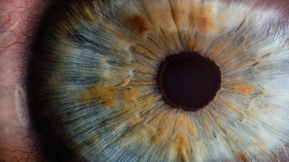 Bambú Clinic - glaucoma treatment